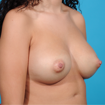 25-34 year old woman treated with Breast Augmentation after 3810877