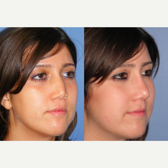 25-34 year old woman treated with Revision Rhinoplasty after 3521427