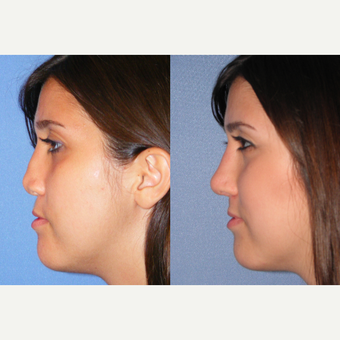 25-34 year old woman treated with Revision Rhinoplasty before 3521427