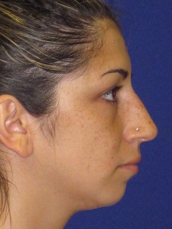 Rhinoplasty before 2487541