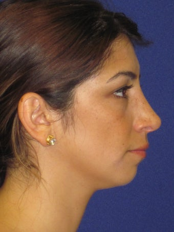 Rhinoplasty after 2487541