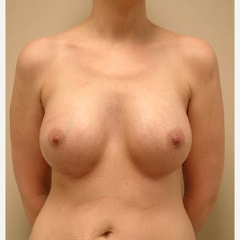 35-44 year old woman treated with Breast Augmentation after 3037670