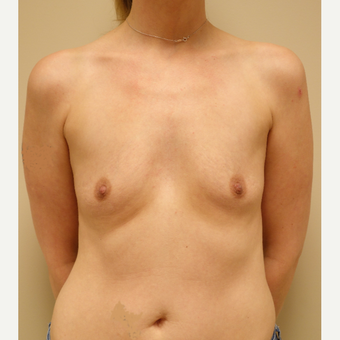35-44 year old woman treated with Breast Augmentation before 3037670