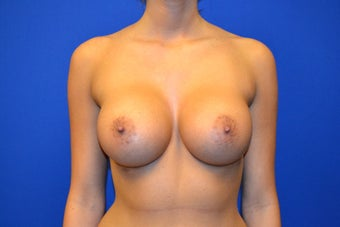 23 Year Old Female Breast Augmentation Saline Implants  after 909087