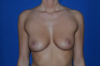 23 Year Old Female Breast Augmentation Saline Implants  before 909087