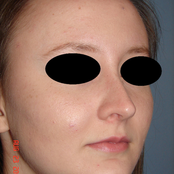 18-24 year old woman treated with Rhinoplasty after 3287942