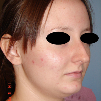 18-24 year old woman treated with Rhinoplasty before 3287942