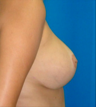25-34 year old woman treated with Breast Lift with Implants after 3817553