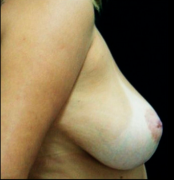 25-34 year old woman treated with Breast Lift with Implants before 3817553