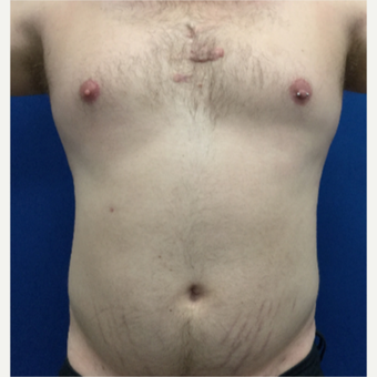 25-34 year old man treated with Slim Lipo after 3495910