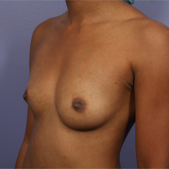 25-34 year old woman treated with Breast Augmentation before 3226382