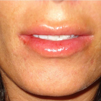 35-44 year old woman treated with Lip Augmentation after 3391177