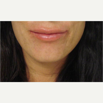 35-44 year old woman treated with Lip Augmentation before 3391177