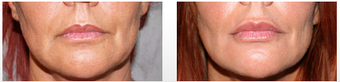Restylane Treatment in the Lips before 949257