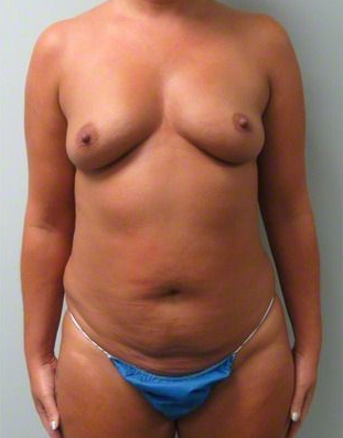 38 year old female treated with Breast Augmentation and Abdominoplasty