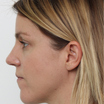 25-34 year old woman treated with Rhinoplasty after 3425592