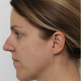 25-34 year old woman treated with Rhinoplasty before 3425592