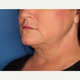 45-54 year old woman treated with Kybella after 3715182