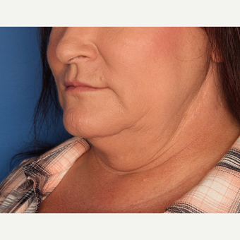 45-54 year old woman treated with Kybella before 3715182