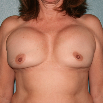 45-54 year old woman treated with Breast Implant Revision before 3227536