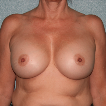 45-54 year old woman treated with Breast Implant Revision after 3227536