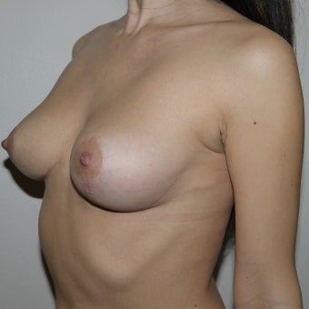 25-34 year old woman treated with Breast Implant Removal after 2554505