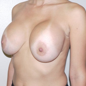 25-34 year old woman treated with Breast Implant Removal before 2554505