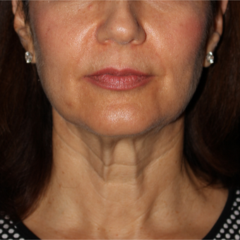 61 year old woman treated with Facelift 5 weeks post-op before 3419008