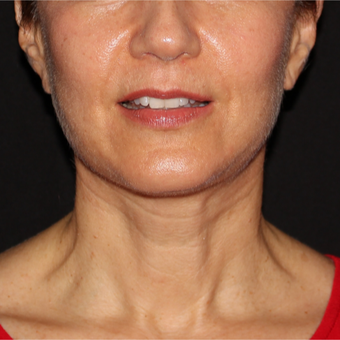 61 year old woman treated with Facelift 5 weeks post-op after 3419008