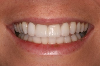 combination of 4 anterior veneers and bleaching after 1002150