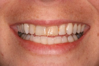 combination of 4 anterior veneers and bleaching before 1002150