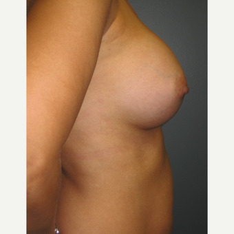 35-44 year old woman treated with Breast Augmentation after 3523633
