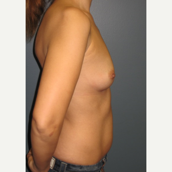 35-44 year old woman treated with Breast Augmentation before 3523633