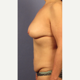 35-44 year old woman treated with Breast Lift before 3768948