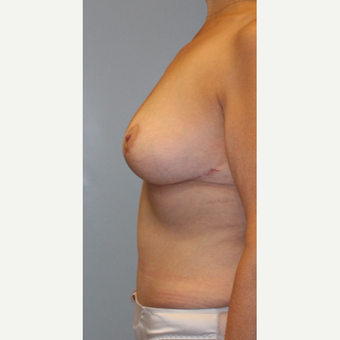 35-44 year old woman treated with Breast Lift after 3768948