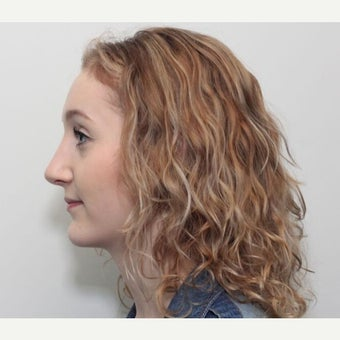 18-24 year old woman treated with Rhinoplasty after 2678061