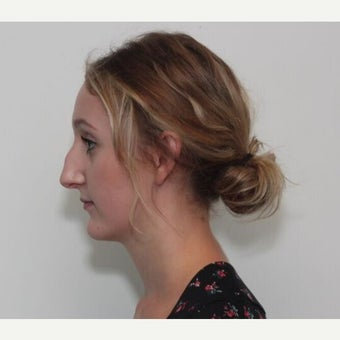 18-24 year old woman treated with Rhinoplasty before 2678061