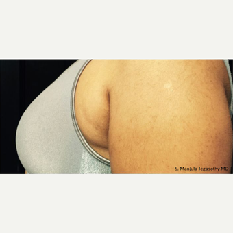 """Side-Bra"" Fat Reduction with Kybella before 2485972"