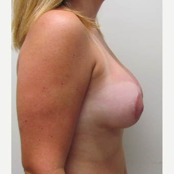 Breast Lift with Implants for this 24 Year Old Woman after 3289548