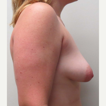 Breast Lift with Implants for this 24 Year Old Woman before 3289548