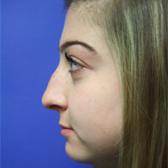 18-24 year old woman treated with Rhinoplasty before 3400169