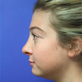 18-24 year old woman treated with Rhinoplasty after 3400169