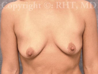 33 yo mother of two with post-pregnancy breast droop and loss of volume. 1169152