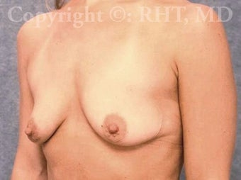 33 yo mother of two with post-pregnancy breast droop and loss of volume. before 1169152