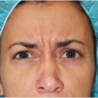 41 year old female treated with Botox for frown lines before 3071472