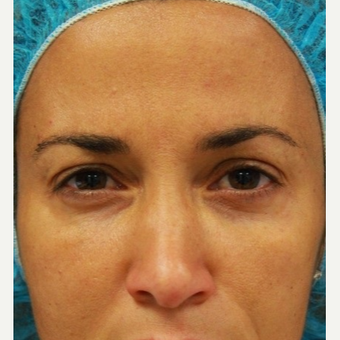 41 year old female treated with Botox for frown lines after 3071472