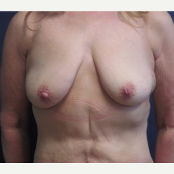 45-54 year old woman treated with Breast Lift with Implants before 3743087
