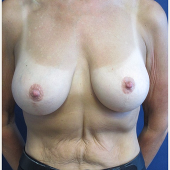45-54 year old woman treated with Breast Lift with Implants after 3743087