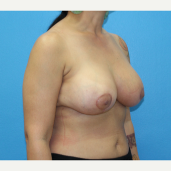 45-54 year old woman treated with Breast Reduction after 3091284