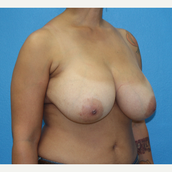 45-54 year old woman treated with Breast Reduction before 3091284